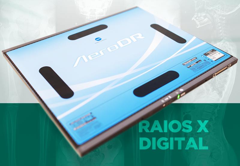 URC inova com novo aparelho de RX digital