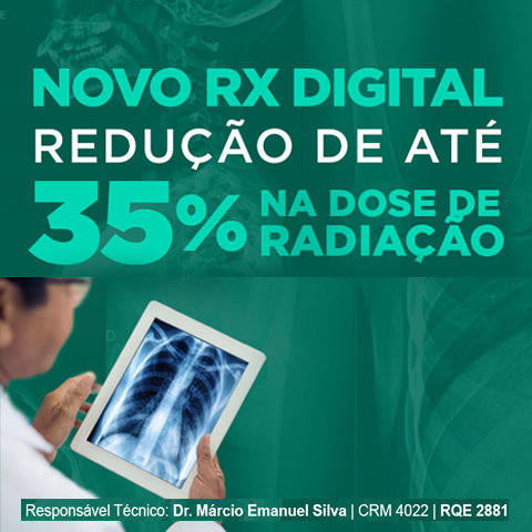 RX Digital